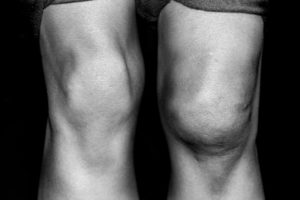 black and white photos of knees | Knee Injuries After a Car Accident